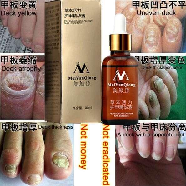 средство от грибка ногтей в Липецке фото 4