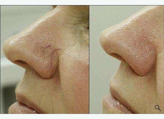 Процедура для кожи лица