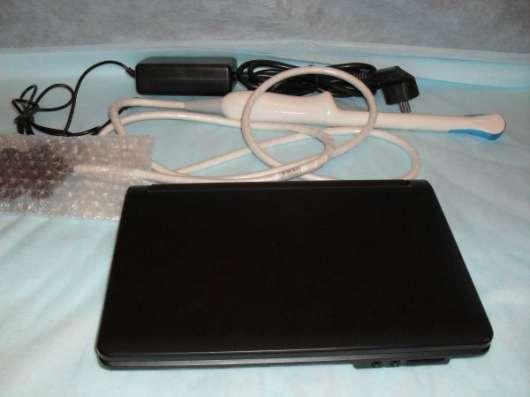 УЗИ – аппарат портативный SW-1200A (laptop/notebook)